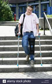 Walking Up Stairs With Crutches by Crutches Stairs Stock Photos U0026 Crutches Stairs Stock Images Alamy