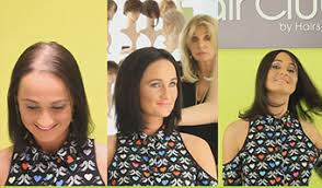 hair toppers for thinning hair women hair extensions you clip to the top of your head to create