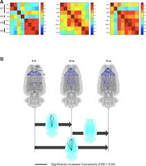 maturation of metabolic connectivity of the adolescent rat brain metabolic connectivity between brain regions