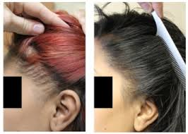 hair transplant for black women traction alopecia in black women is hair transplant an option
