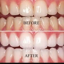 Does Laser Teeth Whitening Work Express Smile Teeth Whitening Tullamore U0026 Athlone Home Facebook