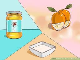 How To Get Rid Of Blind Pimples 4 Ways To Get Rid Of A Blind Pimple Wikihow