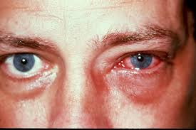 what causes eyes to be sensitive to light what causes eye pain and sensitivity to light www lightneasy net