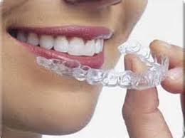 clearcorrect invisible braces bucktown dental associates