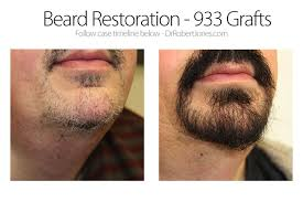 beard implants before and after best beard 2017