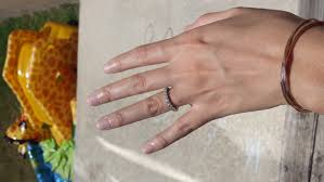 wedding ring dermatitis itchy wedding ring finger meaning 28 images what does it when
