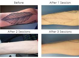 cost of laser tattoo removal the best in el paso professional
