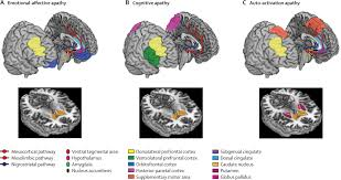 apathy in parkinson u0027s disease clinical features neural