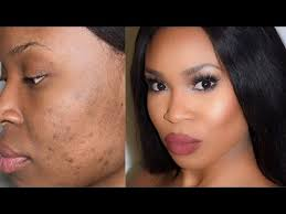 how to colour in a scar in your hairline how to cover scars and dark spots highlight and contour youtube