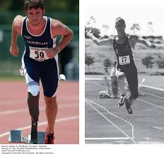 prosthetics physical rehabilitation 6e f a davis pt