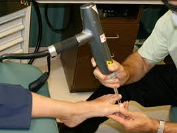 q clear laser treatment for fungal nails southeast