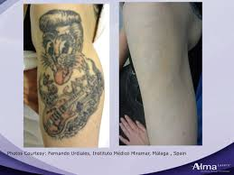 harmony tattoo removal wisconsin vein center medispa offers