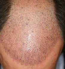 prescreened hair transplant physicians hair loss after hair transplant where did my grafts go regrow