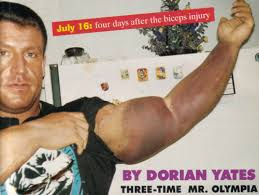 Bench Press Pec Tear Dorian Yates U0027 Comment On The Benchpress Bodybuilding Com Forums