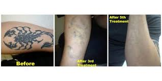 are you a good candidate for laser tattoo removal east coast
