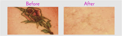 tattoo removal in jacksonville at obi plastic surgery obi