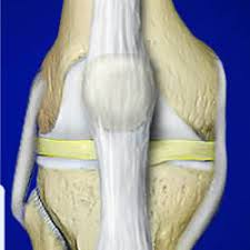 Human Anatomy And Physiology Case Studies Case Studies Arthritis Usa The Center For Regenerative Medicine
