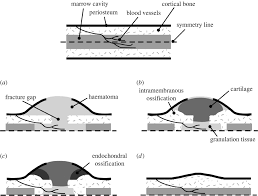 guided bone regeneration in silico biology of bone modelling and remodelling regeneration