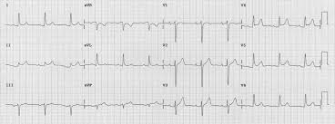 ecg ekg examples and quiz oxford medical education