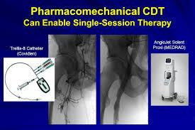 Trellis 8 Suresh Vedantham M D Professor Of Radiology U0026 Surgery