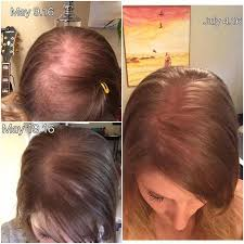 best haircut for alopecia hair extensions for men balding gerayzade me