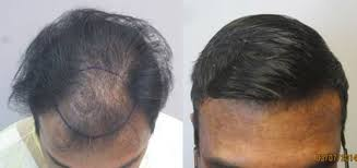 how thick is 1000 hair graft mens before and after hair transplant photos