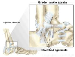 Collateral Ligaments Ankle Foot U0026 Ankle Institute Of Ohio