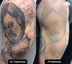 tattoo removal doesn u0027t have to be scary with picosure laser