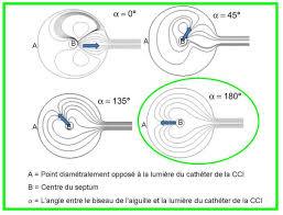 rincage pulsé chambre implantable bonnes pratiques d utilisation d une chambre à cathéter