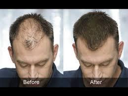 hair weaves for balding men 32 best male pattern baldness treatment images on pinterest male