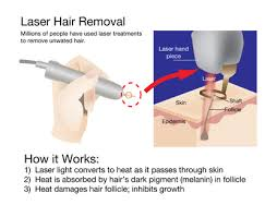 brazilian hair removal pics brazilian hair removal laser treatment for long lasting result