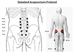 study of acupuncture for low microcurrent point stimulation for the treatment of lower back