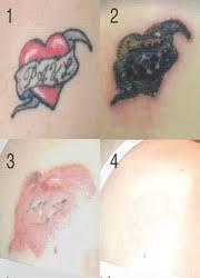 non laser tattoo removal u2013 the island cosmetic clinic