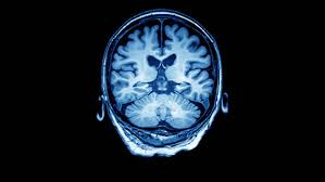 Axial Mri Brain Anatomy Mri Of The Brain In Axial Sequence T2 Stock Footage Video 19831720