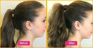 best haircut for alopecia hairstyles to cover alopecia