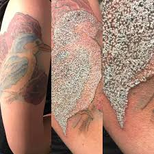 laser removal top gun tattoo the tattoo factory