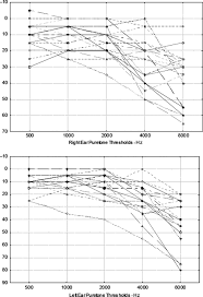 auditory and cognitive effects of aging on perception of