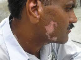 Light Spots On Face 190 Best Natural Vitiligo Treatment Images On Pinterest Vitiligo