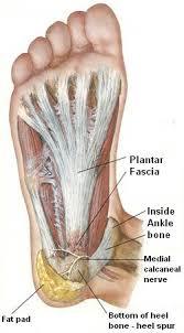 Planters Fasciitis Surgery by Percutaneous Needle Tenotomy Beacon Orthopaedics U0026 Sports Medicine