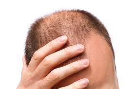 5 Useful Tips for Cancer Patients Battling With Hair Loss
