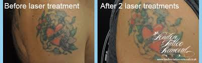 tattoo removal london welcome to london tattoo removal