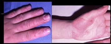 bain de si e pour fissure anale l eczéma dyshidrosique ou dyshidrose c est quoi beauté des peaux