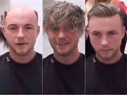 male hair extensions before and after watch hair extensions for men sa breaking news