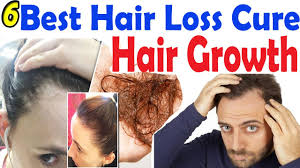 Hair Loss Cure For Women Hair Loss Cure The Best Hair 2017