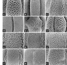 sem micrographs of variation of exine ornamentation in menthinae
