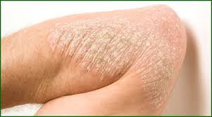psoriasis treatment psoriasis sindubala hospital in trichy