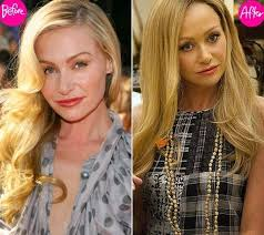 portias hair line portia de rossi plastic surgery gone right