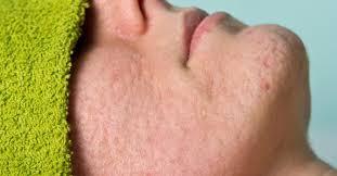 Soigner L Acne Se Débarrasser Des Boutons D Comment Se Débarrasser Des Cicatrices D Acné Fourchette