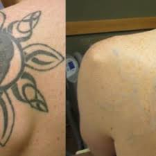 blink tattoo removal 10 photos u0026 13 reviews tattoo removal