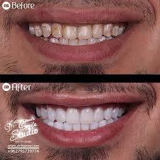 dr thamer u0027s smile studio dental clinics dentist in amman